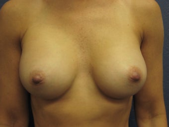 Breast Augmentation after 291315