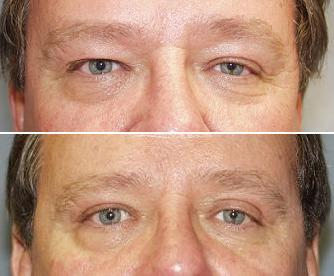 Eyelid surgery before 140082