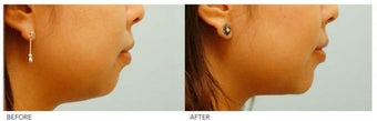 Chin Implant (Alloplastic Chin Augmentation) before 136408
