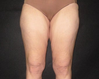 Thigh Lift before 590636