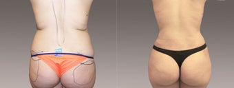 Fat Transfer/Buttock Reshaping