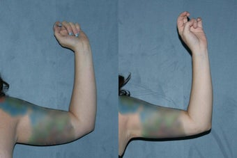 Liposuction - Upper Arms before 130841