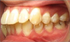 Invisalign Treatment 346651