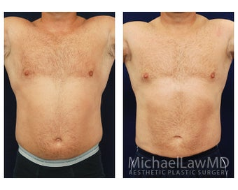 Liposuction before 495047