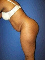 Tummy Tuck (Abdominoplasty) 428737