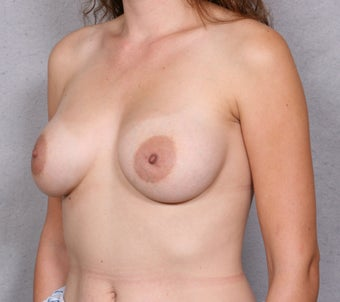 Breast Implant Revision 463936