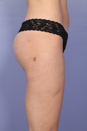 Liposuction 470848