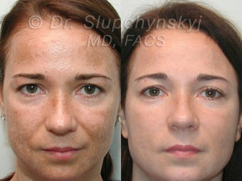 Obagi Blue Peel, Upper and Lower Blepharoplasty before 555146