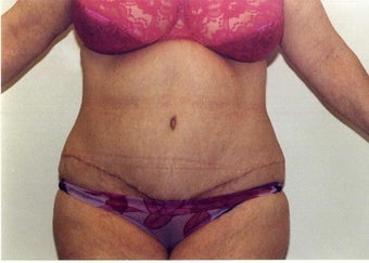 Tummy Tuck after 215129