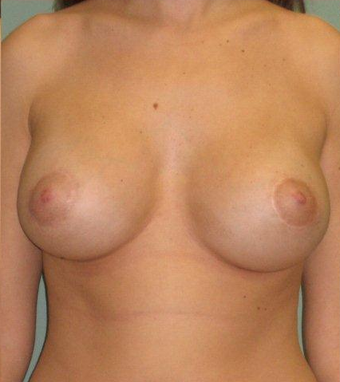 Breast Augmentation / Lift after 355734