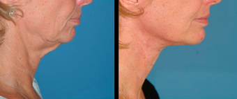 Neck lift and Mini-facelift before 306841
