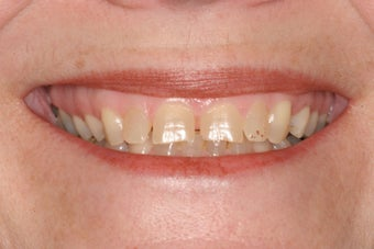 Full upper arch of veneers before 244071