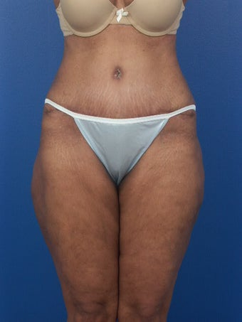 Tummy Tuck  after 471743