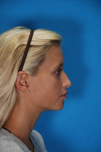 Rhinoplasty (nose job, nasal surgery) before 368135