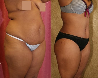 tummy tuck before 304683
