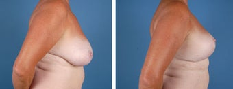 Breast Lift after 355777