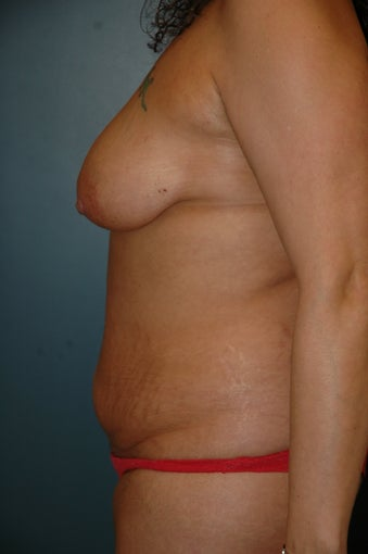 Breast lift and tummy tuck