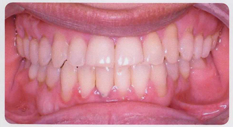 Anterior Crossbite after 353446