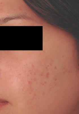Laser Acne Treatment after 82988