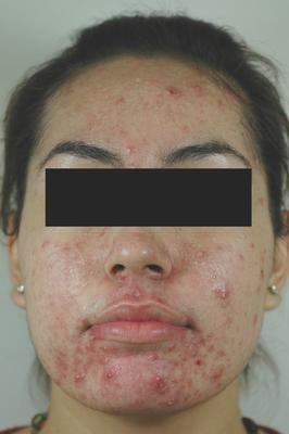 Laser Acne Treatment before 82948