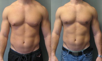 Gynecomastia New York before 349231