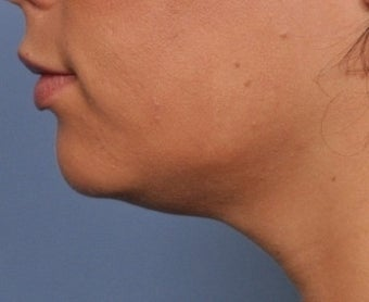 Skin Tightening after 332574
