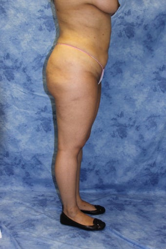 Liposuction after 615842