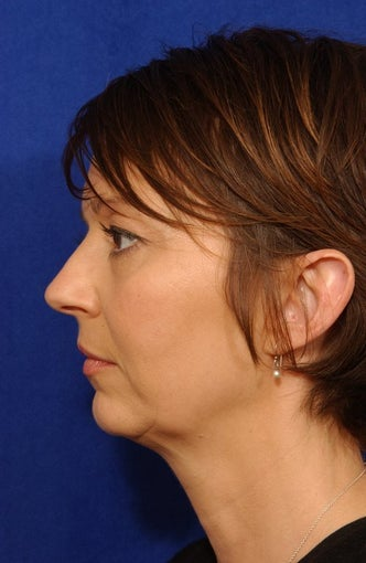 Neck-lace procedure with anatomic chin implant  before 81685