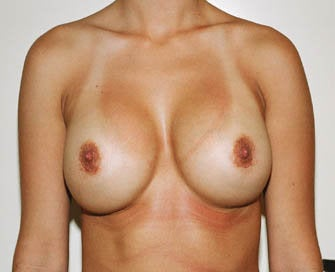 Augmentation Mammaplasty (Breast Implants) after 226499