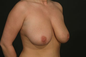 Breast Reduction before 287713