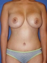 Tummy Tuck Surgery (abdominoplasty) and Breast Implants after 139135