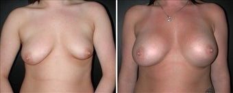 Breast Augmentation before 110025