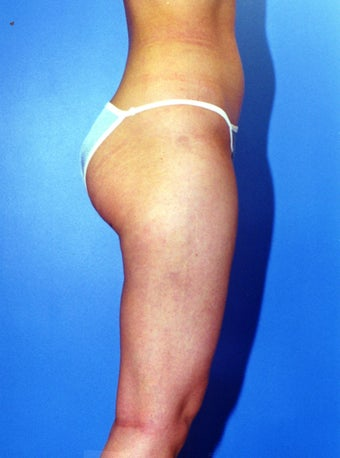 liposuction of thighs for women after 583572