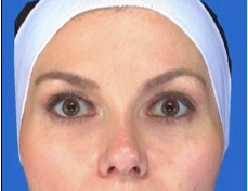 Botox Frontalis after 469029