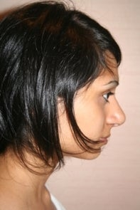 Asian Rhinoplasty after 448668