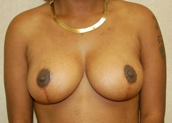 Breast reduction after 260534