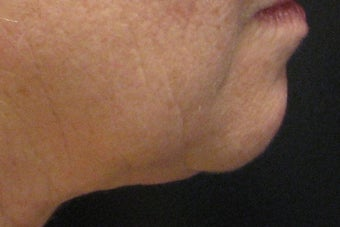 GentleYag treatment for skin tightening after 152215