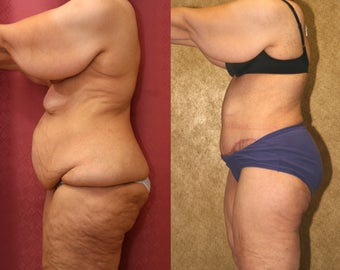 Body Lift after massive weight loss 583650