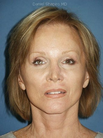Facelift, Endoscopic Browlift, Upper and Lower Blepharoplasty, Perioral Dermabrasion after 248857