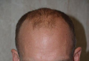 Hair Transplant / 2000 grafts before 222911