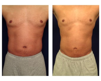 Liposuction before 397015