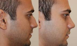 Rhinoplasty. 11 days after surgery. before 119296