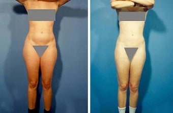 Liposuction before 636235