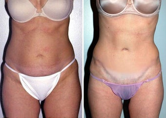 Abdominoplasty (Tummy tuck) before 330698