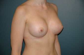 Breast augmentation after 203397