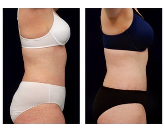Liposuction 397021