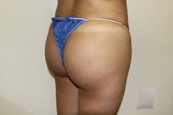 Brazilian Butt Lift 481681