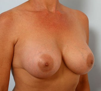 Breast Augmentation after 260908