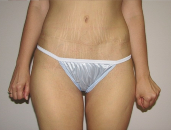 Tummy Tuck after 410415