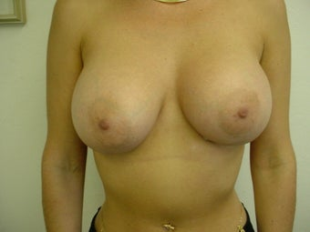 Breast implants after 241857